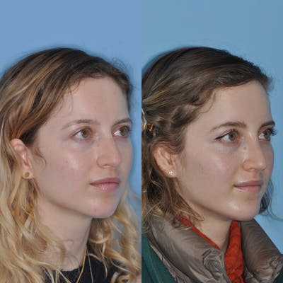Chin Implants Gallery - Patient 31709269 - Image 4