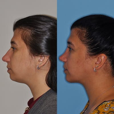 Chin Implants Gallery - Patient 31709272 - Image 1