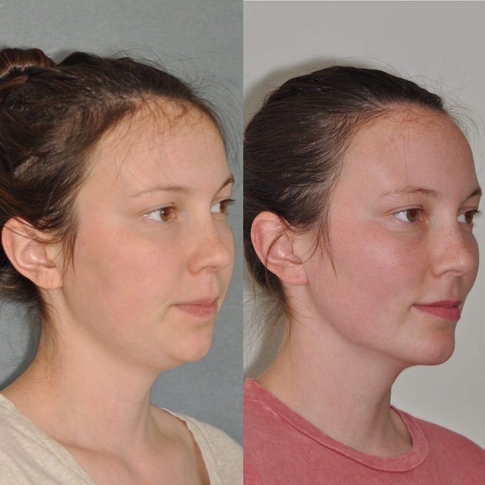 Chin Implants Gallery - Patient 31709271 - Image 2