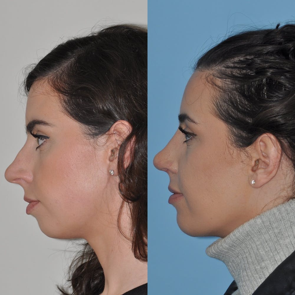 Chin Implants Gallery - Patient 31709268 - Image 5