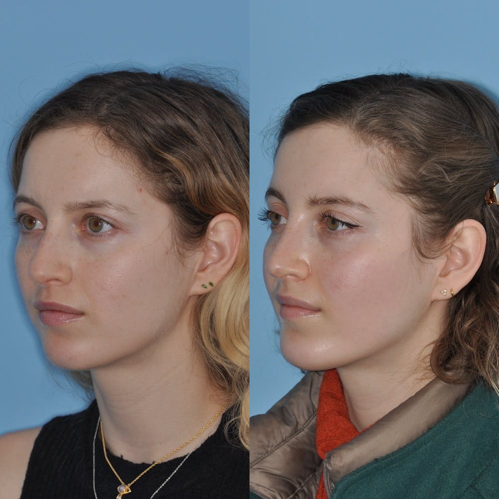 Chin Implants Gallery - Patient 31709269 - Image 5