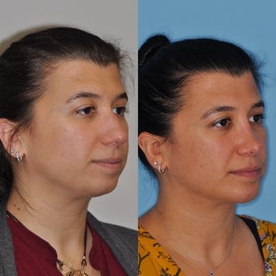 Chin Implants Gallery - Patient 31709272 - Image 2
