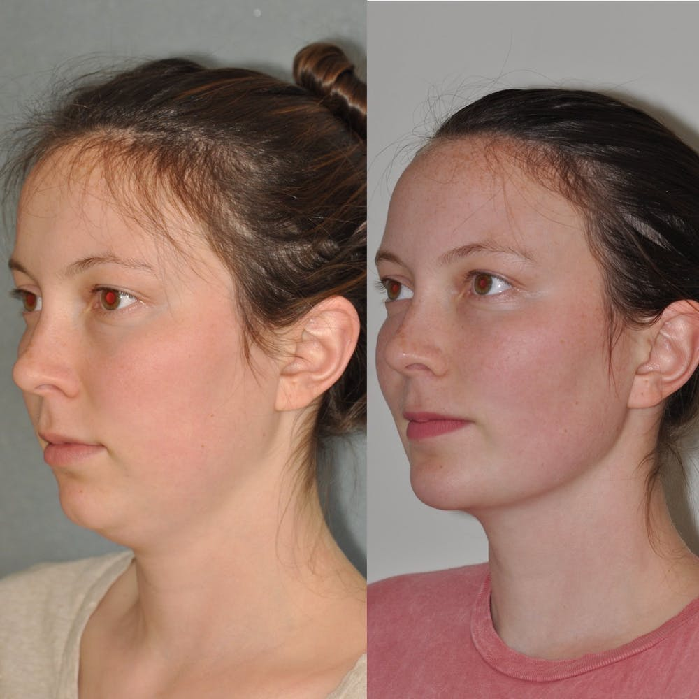 Chin Implants Gallery - Patient 31709271 - Image 3