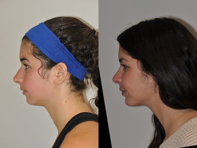 Chin Implants Gallery - Patient 31709270 - Image 1