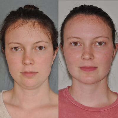 Chin Implants Gallery - Patient 31709271 - Image 4