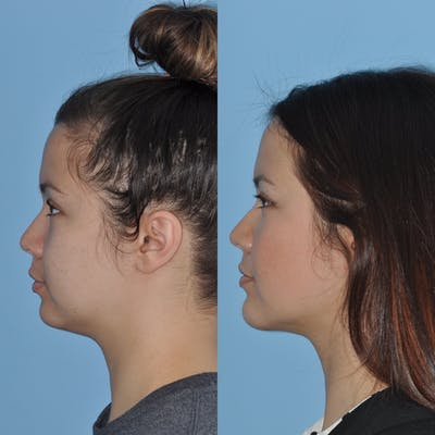 Chin Implants Gallery - Patient 31709274 - Image 2