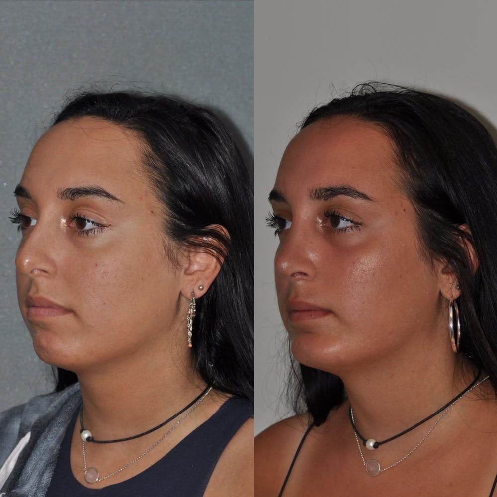Chin Implants Gallery - Patient 31709275 - Image 1