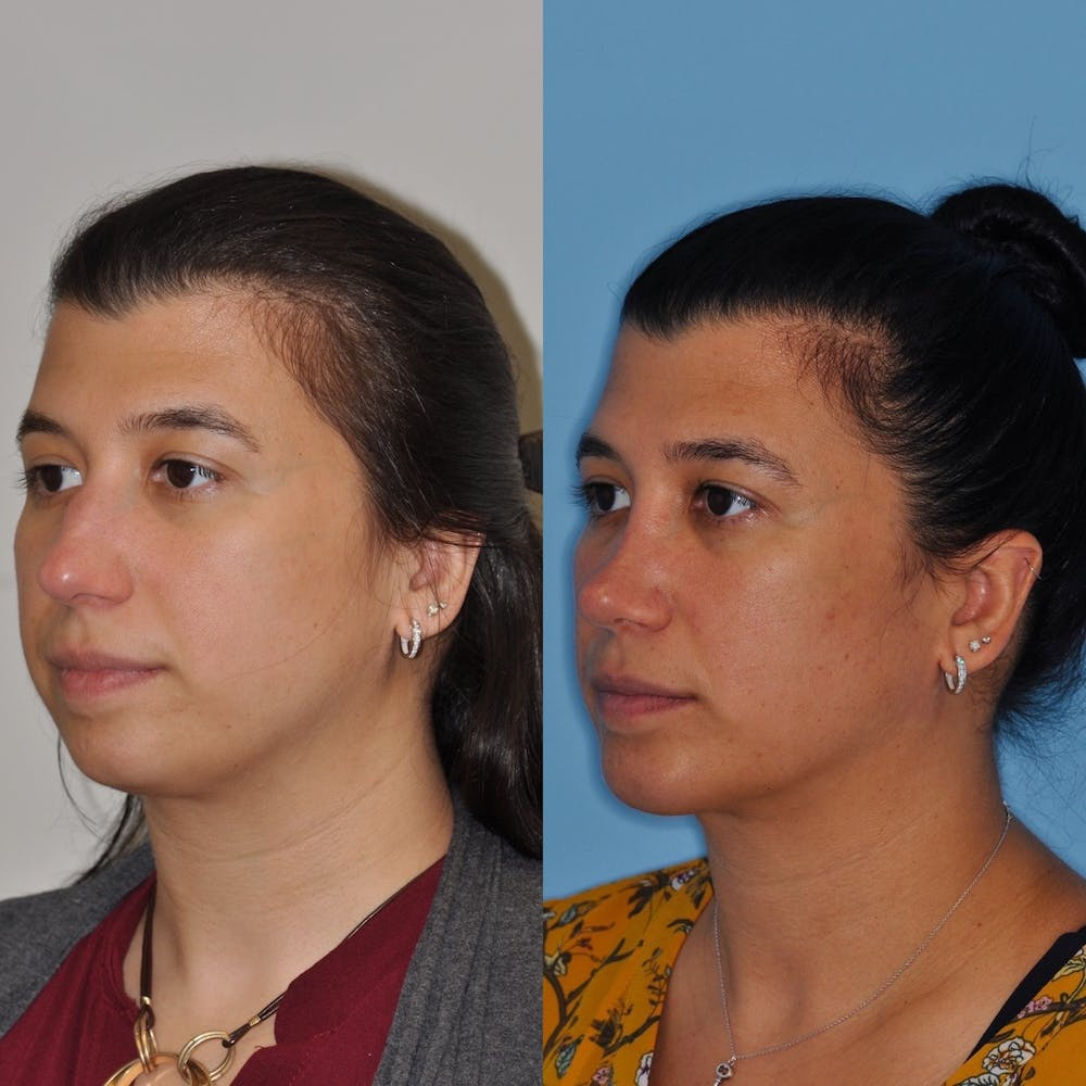 Chin Implants Gallery - Patient 31709272 - Image 3