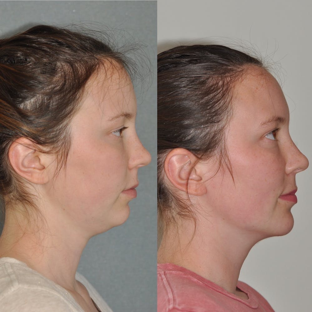 Chin Implants Gallery - Patient 31709271 - Image 5