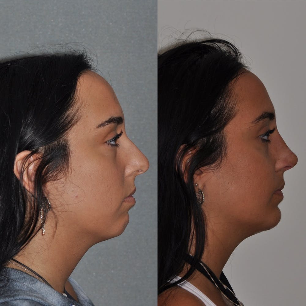 Chin Implants Gallery - Patient 31709275 - Image 2