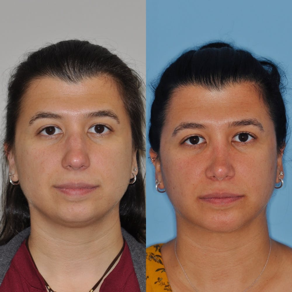 Chin Implants Gallery - Patient 31709272 - Image 4