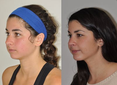 Chin Implants Gallery - Patient 31709270 - Image 4