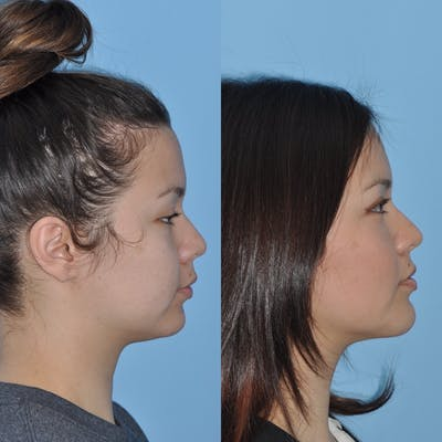 Chin Implants Gallery - Patient 31709274 - Image 4
