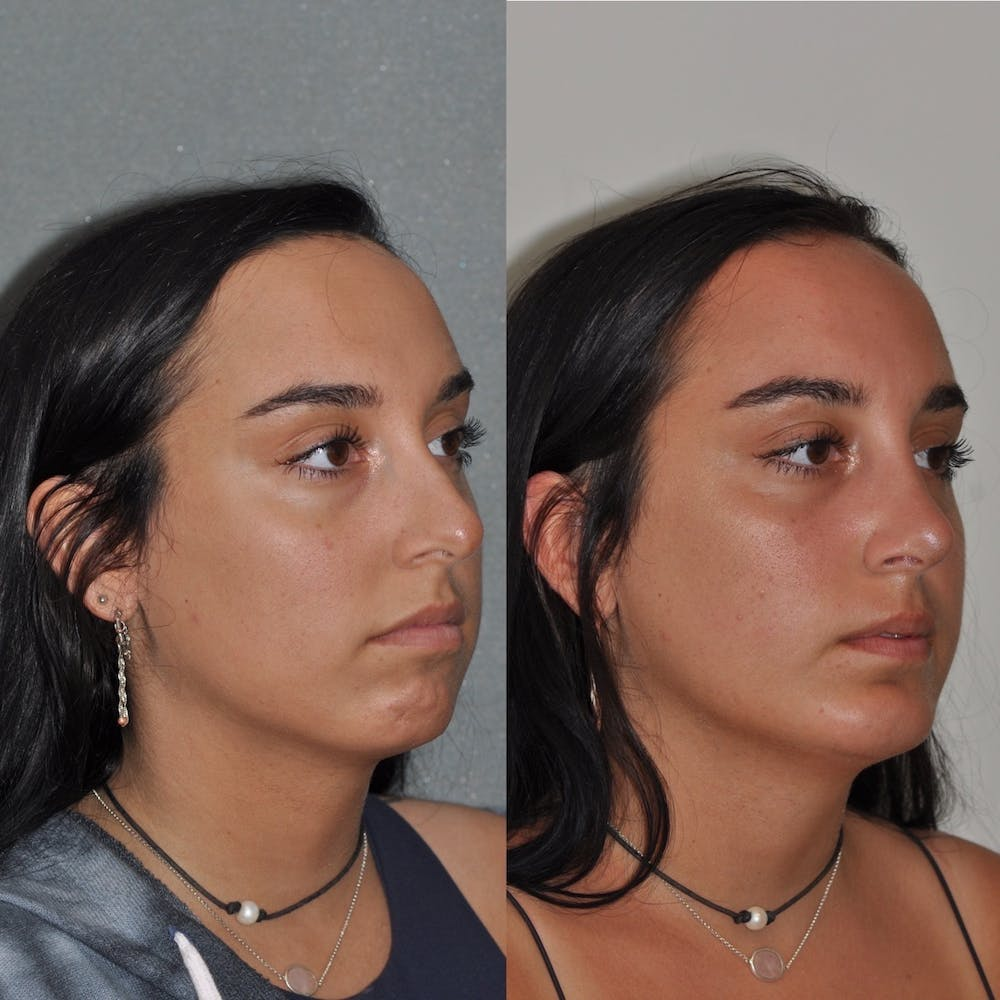Chin Implants Gallery - Patient 31709275 - Image 3