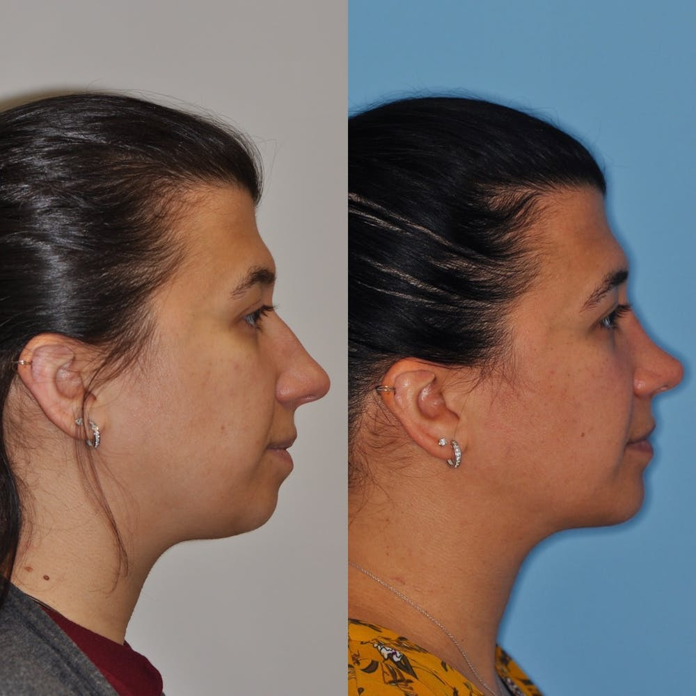 Chin Implants Gallery - Patient 31709272 - Image 5
