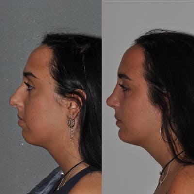 Chin Implants Gallery - Patient 31709275 - Image 4