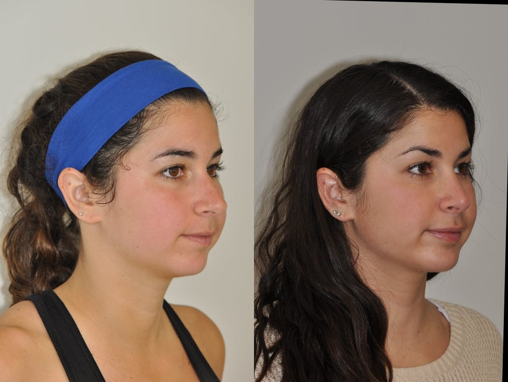Chin Implants Gallery - Patient 31709270 - Image 5