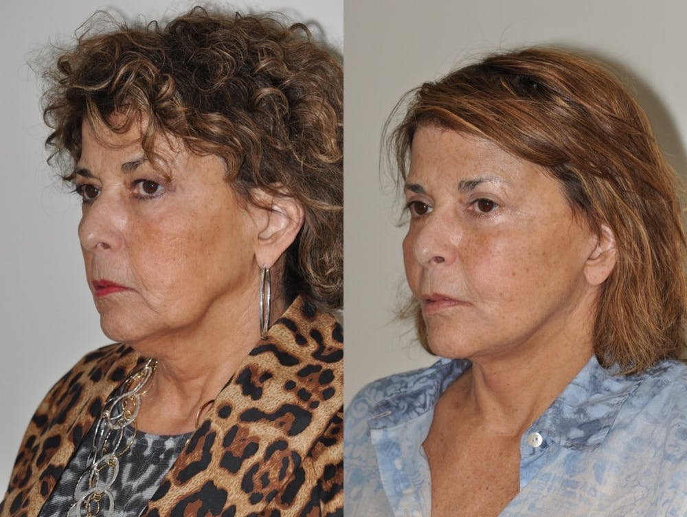 Facelift Gallery - Patient 31709459 - Image 1