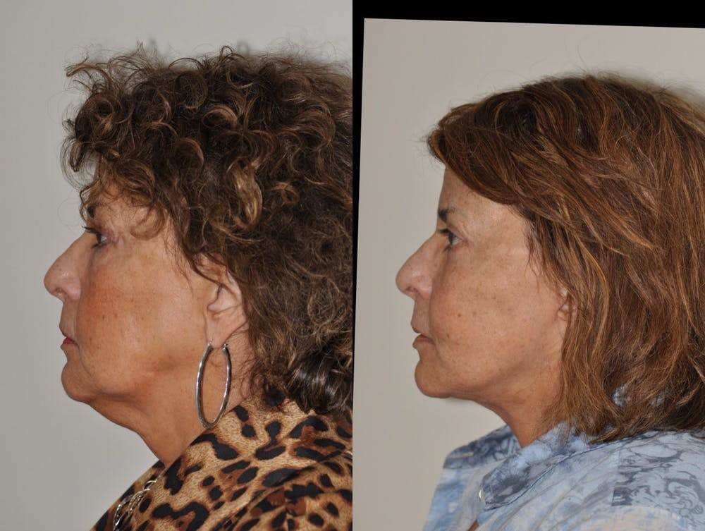Facelift Gallery - Patient 31709459 - Image 2