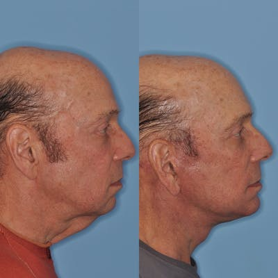 Facelift Gallery - Patient 31709461 - Image 1
