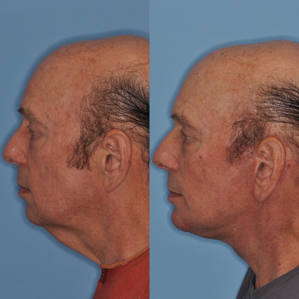 Facelift Gallery - Patient 31709461 - Image 2