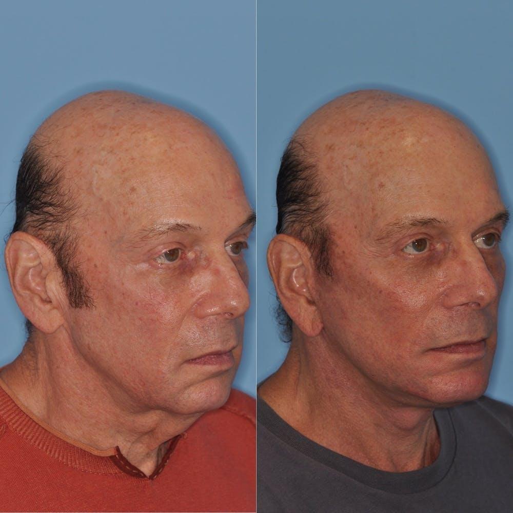 Facelift Gallery - Patient 31709461 - Image 3