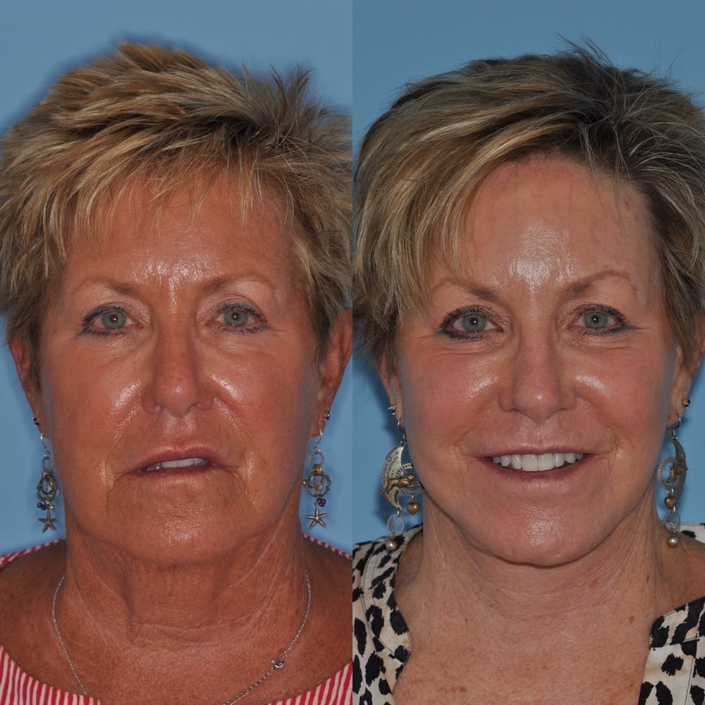 Facelift Gallery - Patient 31709462 - Image 1