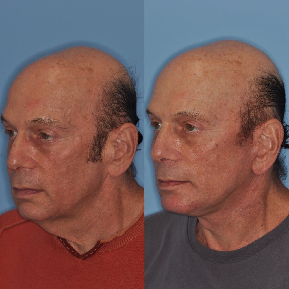 Facelift Gallery - Patient 31709461 - Image 4