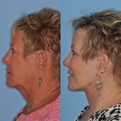 Facelift Gallery - Patient 31709462 - Image 2