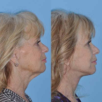 Facelift Gallery - Patient 31709463 - Image 1