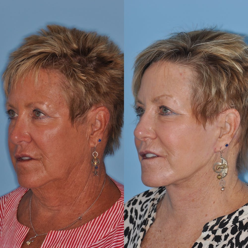 Facelift Gallery - Patient 31709462 - Image 3