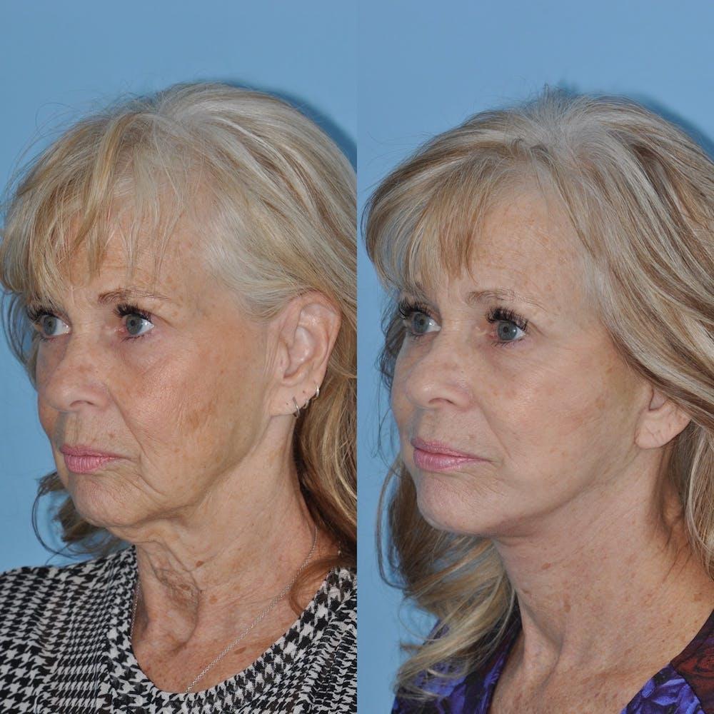Facelift Gallery - Patient 31709463 - Image 2