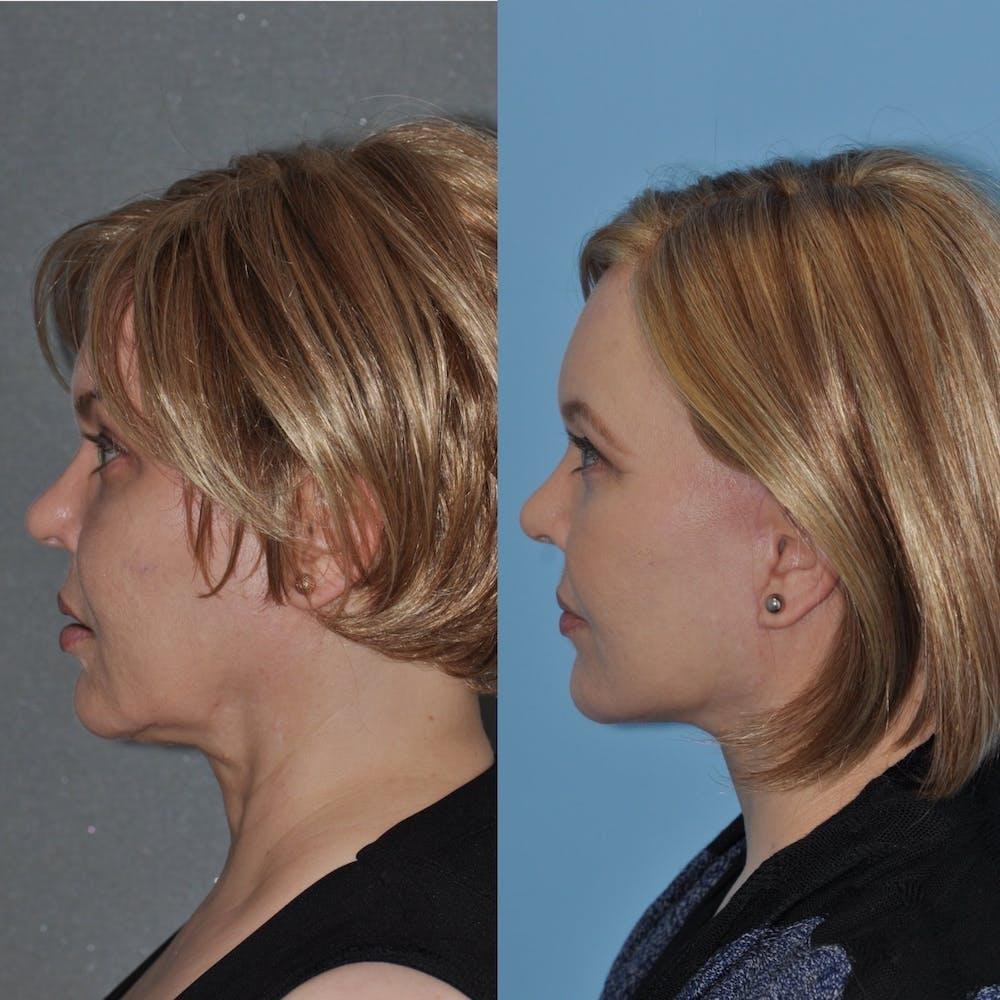 Facelift Gallery - Patient 31709464 - Image 1