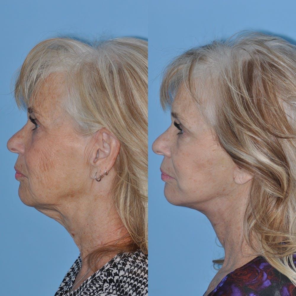 Facelift Gallery - Patient 31709463 - Image 3