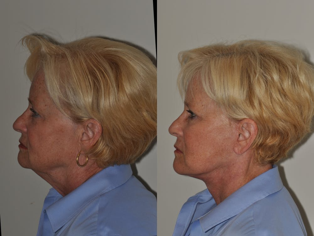 Facelift Gallery - Patient 31709465 - Image 1