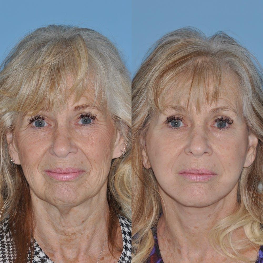 Facelift Gallery - Patient 31709463 - Image 4