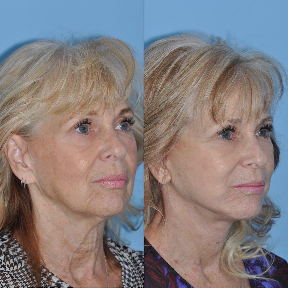 Facelift Gallery - Patient 31709463 - Image 5