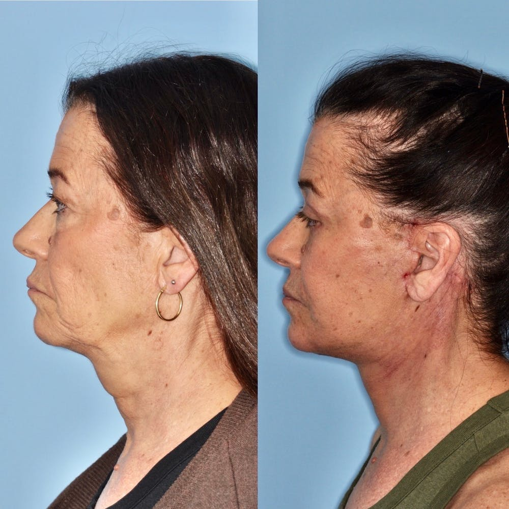 Facelift Gallery - Patient 31709466 - Image 1