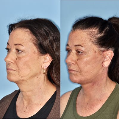 Facelift Gallery - Patient 31709466 - Image 2