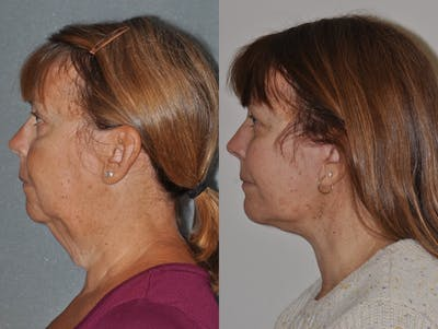 Facelift Gallery - Patient 31709469 - Image 1