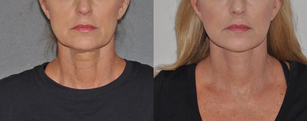 Facelift Gallery - Patient 31709467 - Image 1