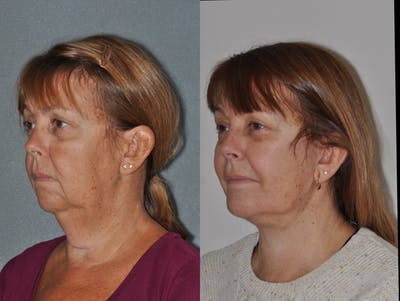 Facelift Gallery - Patient 31709469 - Image 2