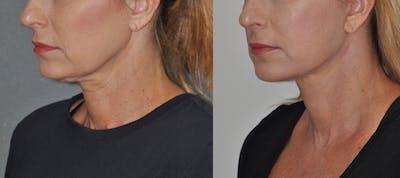 Facelift Gallery - Patient 31709467 - Image 2