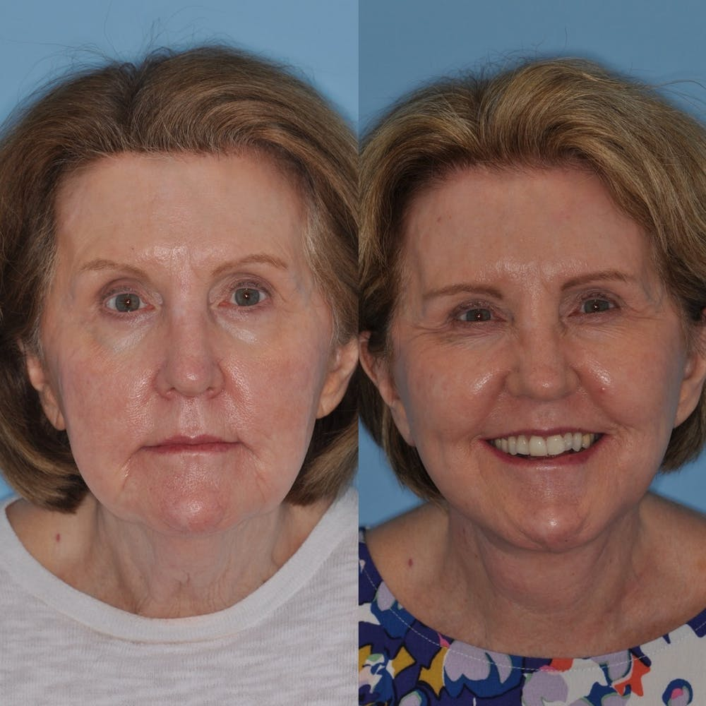 Facelift Gallery - Patient 31709470 - Image 1