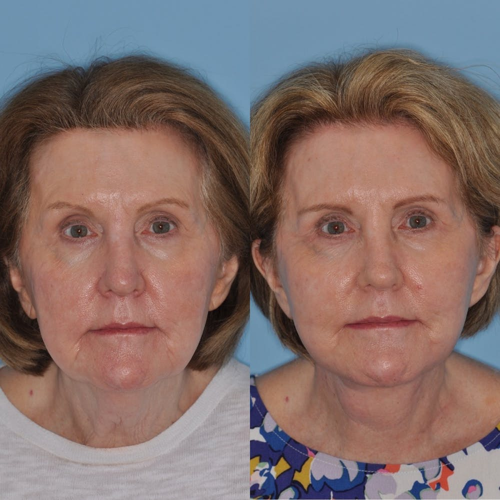 Facelift Gallery - Patient 31709470 - Image 2