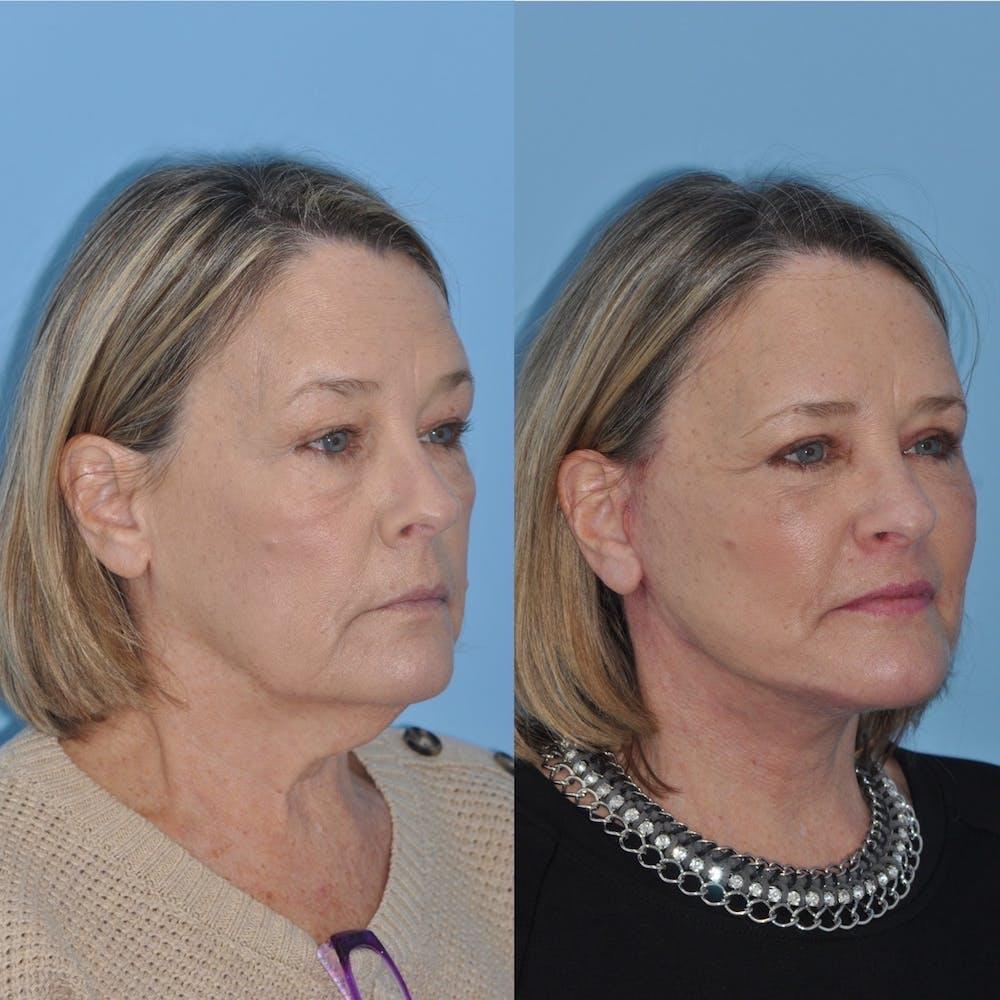Facelift Gallery - Patient 31709471 - Image 1
