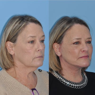 Facelift Gallery - Patient 31709471 - Image 1
