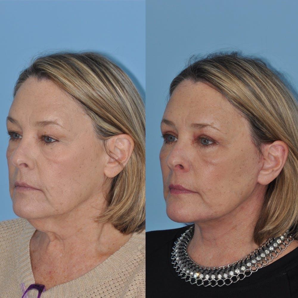 Facelift Gallery - Patient 31709471 - Image 2