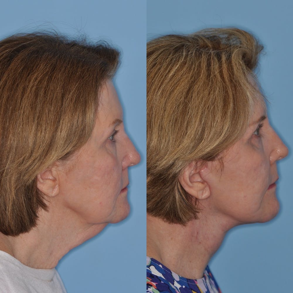 Facelift Gallery - Patient 31709470 - Image 3