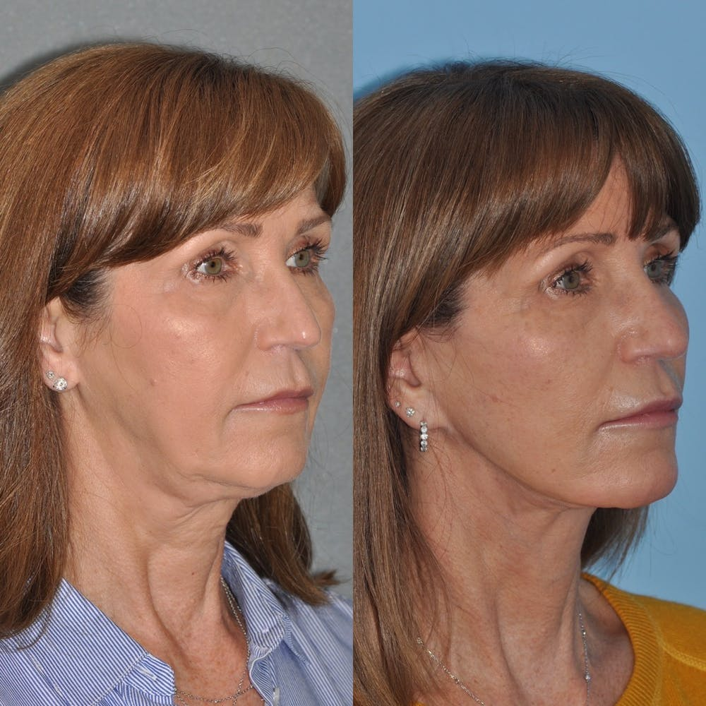 Facelift Gallery - Patient 31709472 - Image 1